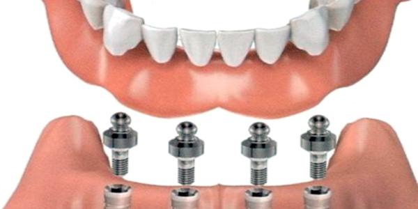 protesi-dentaria-fissa-su-impianti