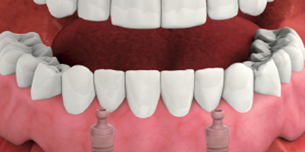 protesi dentaria mobile su impianti