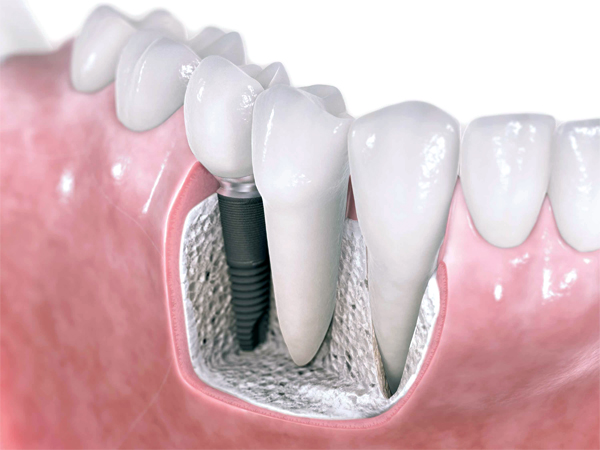 Implantologia Dentale Ferrara